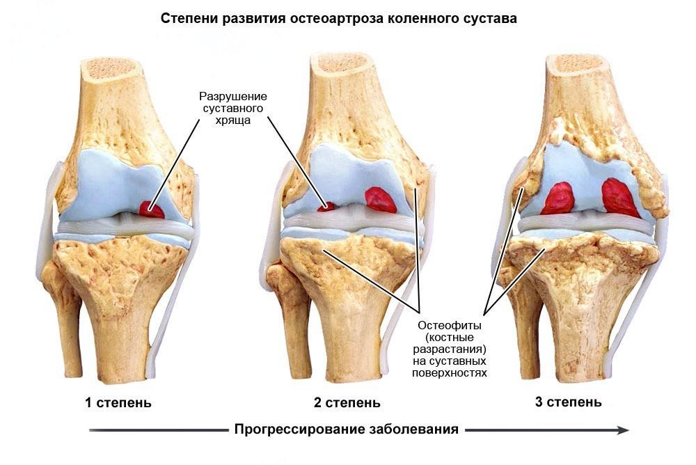 Лекарства для укрепление костных суставов ног почему болит тазобедренный сустав при беременности