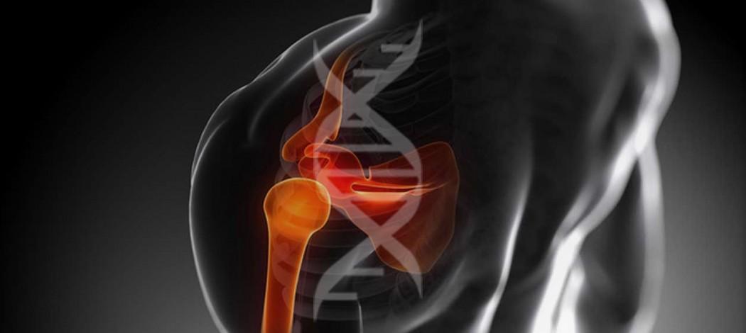 Нестабильность плечевого сустава. Как не навредить?