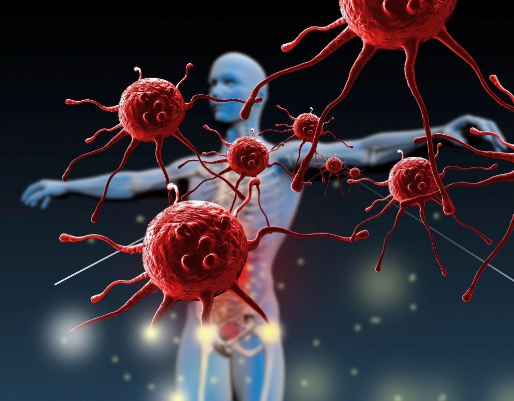 Ослабление иммунитета при повышенной физической нагрузке thumbnail